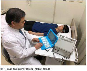 認知症へ超音波治療